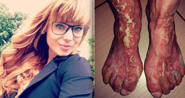 Maruška trpí vzácnou bolestivou nemocí kůže: Díky kampani pomůže desítkám stejně trpících dětí