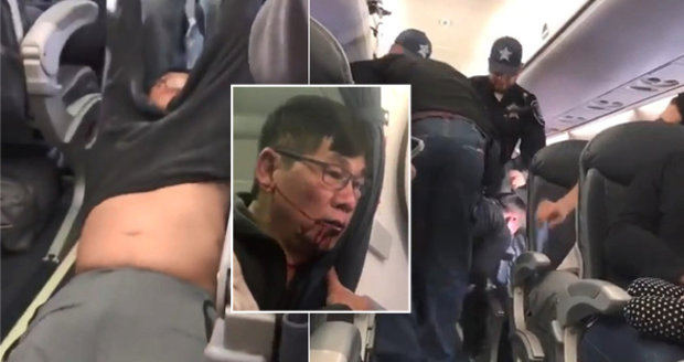 Lékaře brutálně vyhodili z letadla a rozbili mu obličej. Chci vás za to pochválit, vzkázal šéf aerolinek