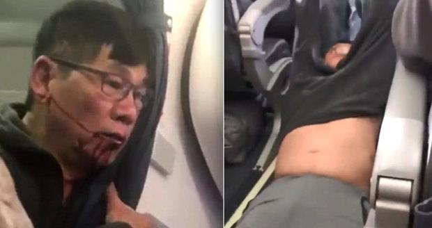 Zbitý lékař, kterého vyhodili z letu: Pacientovi dával za gay sex drogy, brali je spolu. Práskla ho manželka