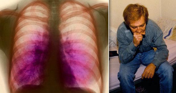 Nemocnice vypustila omylem vzorek tuberkulózy. Musela evakuovat celou budovu