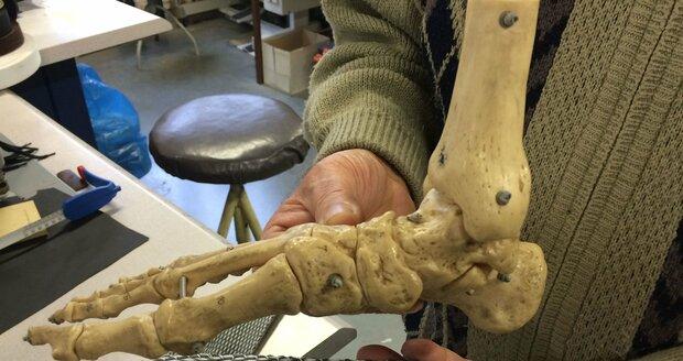 Josef Hanák s patentovanou biomechanickou vložku s jamkou pro palcový kloub