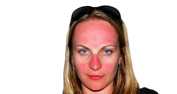 Spálená kůže