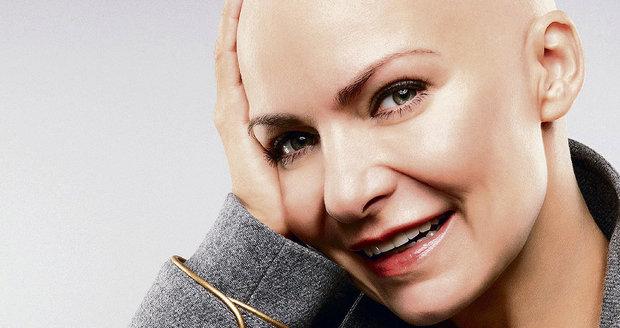 2010: Tehdy poprvé statečně bojovala s rakovinou a nestyděla se ani za holou hlavu.
