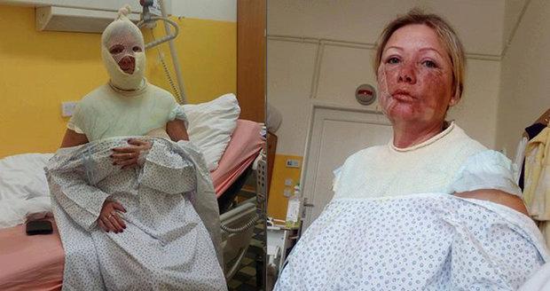 Děsivá oslava Markétiných 40. narozenin: Manžel mi vylil vařící vodu do obličeje!