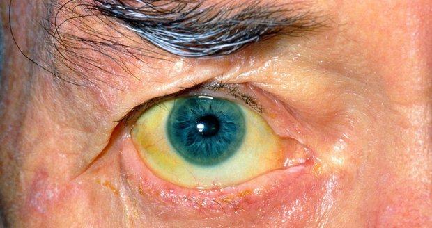 Typickým znakem žloutenky je zežloutnutí očního bělma.
