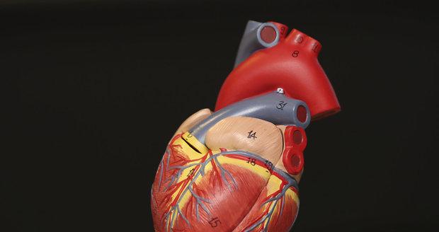 Lidé si jí často pletou s infarktem