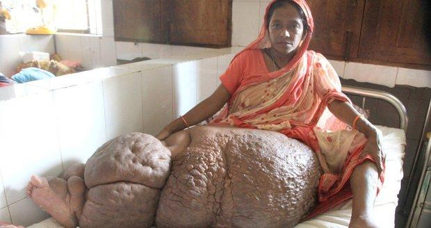 Ženě kvůli parazitovi narostla obří noha. Končetina váží už 60 kilo