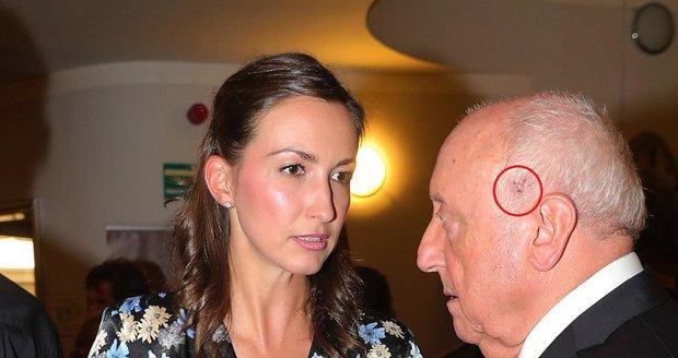 Felix Slováček s Lucií Gelemovou na premiéře muzikálu Muž se železnou maskou. Felix měl na spáncích puchýřky.