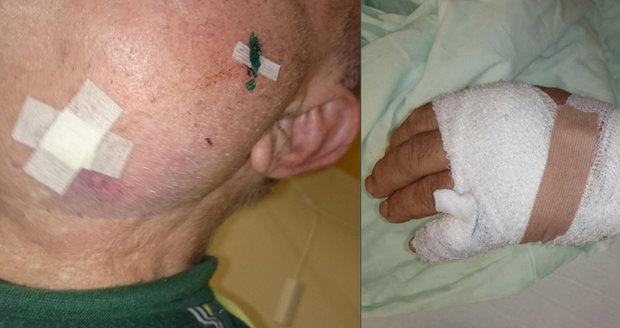 Horor v Teplicích: Psychicky nemocný muž pobodal v nemocnici dva pacienty!