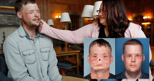 Dojemné setkání vdovy a muže s transplantovaným obličejem: Pohladila si tvář mrtvého manžela!