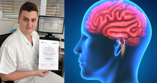 Neurolog z Brna vymyslel rychlejší odhalení mrtvice: »Pepka klepne« ročně 42 tisíc Čechů!