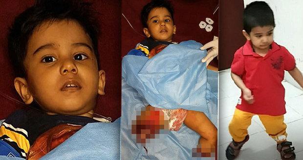 Chlapce (2) srazil vlak a přišel o nohy: Lékaři mu je přišili a teď znovu chodí