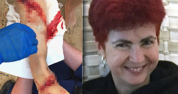Žraločí útok v oblíbeném letovisku: Anně (55) lidožrout brutálně potrhal nohu!