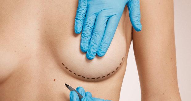 Mýty o plastice prsou. Opravdu se s implantáty nesmí do letadla?