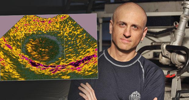 Úder do rozkroku odhalil rakovinu: Honza (42) onemocněl nádorem varlat