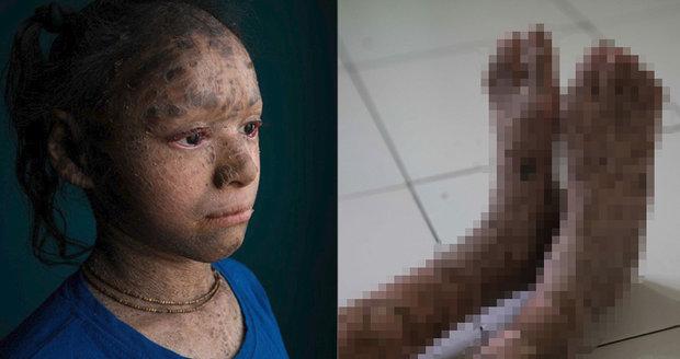 Hadí dívka (13) se vzácnou nemocí krvácí na slunci. Domov se pro ni stal vězením