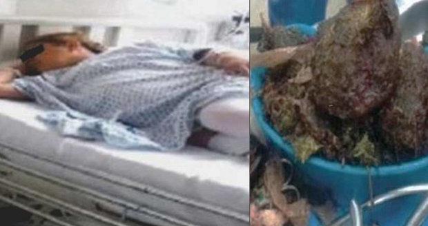 »Těhotná« žena si stěžovala na bolesti: Z břicha jí vytáhli kilo marihuany!