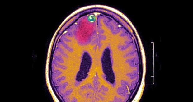 Mozek epileptika