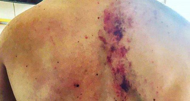 Ondřej Bábor má po nehodě na motorce ošklivě otlučená záda