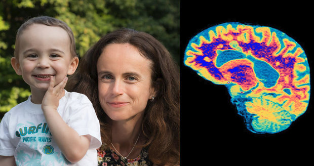 Lenka (43) bojuje s roztroušenou sklerózou i šimlem. Máma dvou dětí přišla o důchod