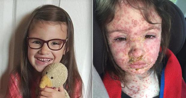 Matka zveřejnila dech beroucí fotky své dcery. Tohle jsou nejhorší neštovice, které svět viděl!
