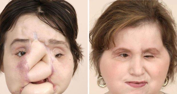 """Před třemi roky se střelila do obličeje. Lékaři dali Katie (21) """"novou tvář"""""""