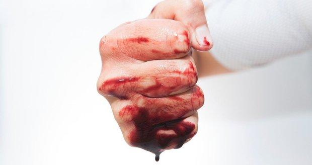 Rozmlátil výlohu a pak zaútočil na strážníky: Zakrváceného cizince zklidnil až operační sál