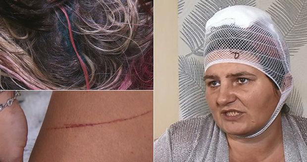 Martina se probudila nahá a pořezaná ve vaně, do bytu v Mostě jí vtrhl agresivní muž