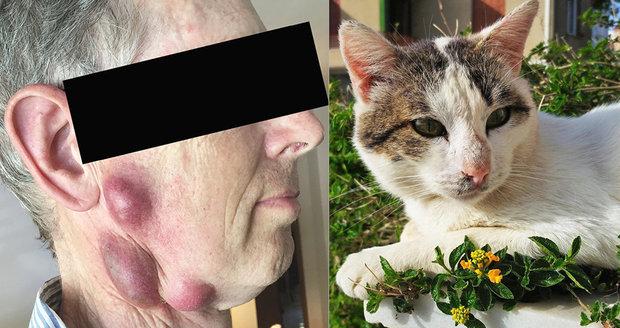 Muži se udělaly na obličeji obří vředy: Infekce od kočky!