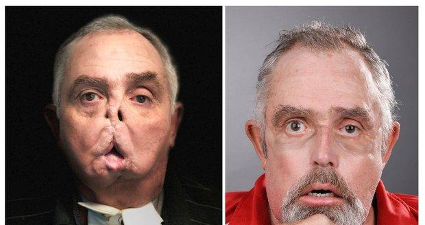 Muž bez obličeje se bál vycházet z domu: Zázračná operace mu změnila život!