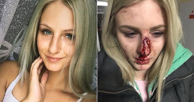 Edina (20) zveřejnila fotografie po útoku expřítele! V krvi skončili další 3 lidé!