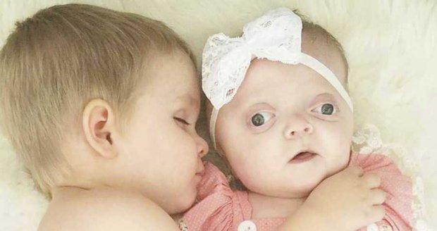 Měla hlavičku jako kužel a vypouklé oči. Dlouho po porodu ji ani nechtěli ukázat matce!