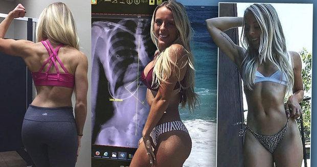 Sexy hvězda Instagramu odmítla operaci páteře: Bez ní může zemřít!