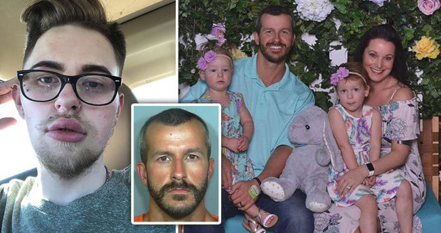 """Americký """"Neff Novák"""" podváděl manželku s gay gigolem: Platil mu i plastického chirurga"""