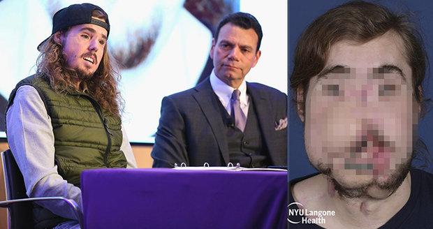 Cameron (26) si omylem ustřelil půlku obličeje: Zpět do života ho vrátila transplantace