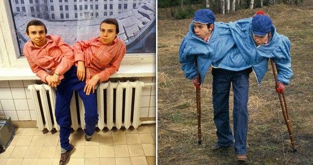 Výjimečné sestry Sověti mučili a zkoumali: Siamská dvojčata zavřeli do ústavu