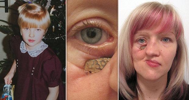 Mirce se po rakovině rozpadá tvář. V Anglii by ji mohli zachránit, pojišťovna nechce platit