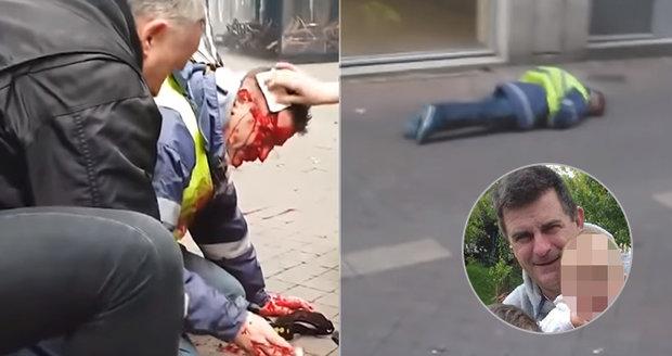 Tvrdý zásah proti žlutým vestám: Otce tří dětí střelili do hlavy, muž je v kómatu