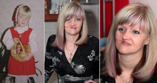 """Mirce se bortila tvář: """"Varovali, že nepřežiji."""" Češi se jí složili na operaci"""