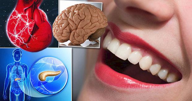 Bolest zubů vypovídá o stavu našich vnitřních orgánů.