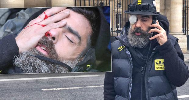 Policisté ho měli střelit do oka, on jim děkuje. Poloslepý vůdce žlutých vest promluvil