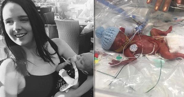 Chlapec se narodil o 17 týdnů dříve: Zachránili ho igelitovým sáčkem!