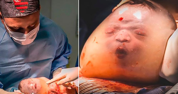 """Unikátní snímky z neuvěřitelného porodu: Chlapeček se narodil """"v bublině"""" z plodového obalu"""