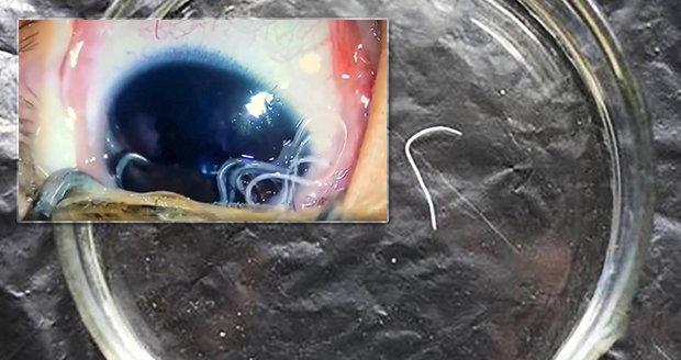 V Česku se objevil nebezpečný oční červ: Přenáší ho octomilky!