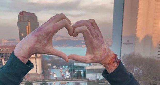 Týnuš Třešničková ukázala popálené ruce