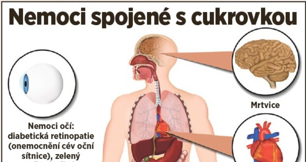 Nemoci spojené s cukrovkou