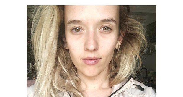 Nenalíčená Tamara Klusová vypadá velmi nezdravě.