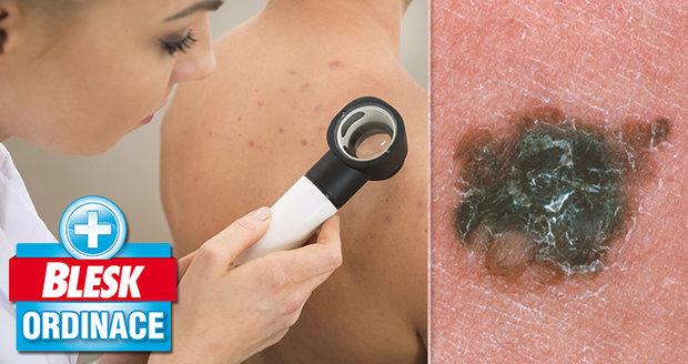 Podezření na 5 zhoubných nádorů kůže a 1 melanom, 10 nutných odstranění znamének! To Blesk Ordinace odhalila a tak pomohla