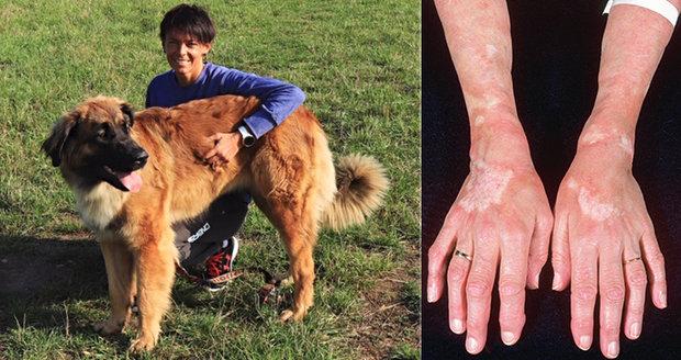 Ivana (38) trpí nevyléčitelnou nemocí: Bolestí jsem probrečela noci, bála se smrti!