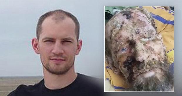 """Skutečná tvář muže z """"medvědího brlohu"""": Alexandr býval fešák, než ho postihla vážná choroba"""